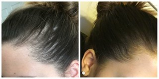 Paramedical Tattooing - trichotillomania treatment in Houston, The Woodlands, Conroe, and Magnolia TX