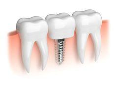 Implant Dental Cedar Park TX | We provide amazing dentistry … | Flickr