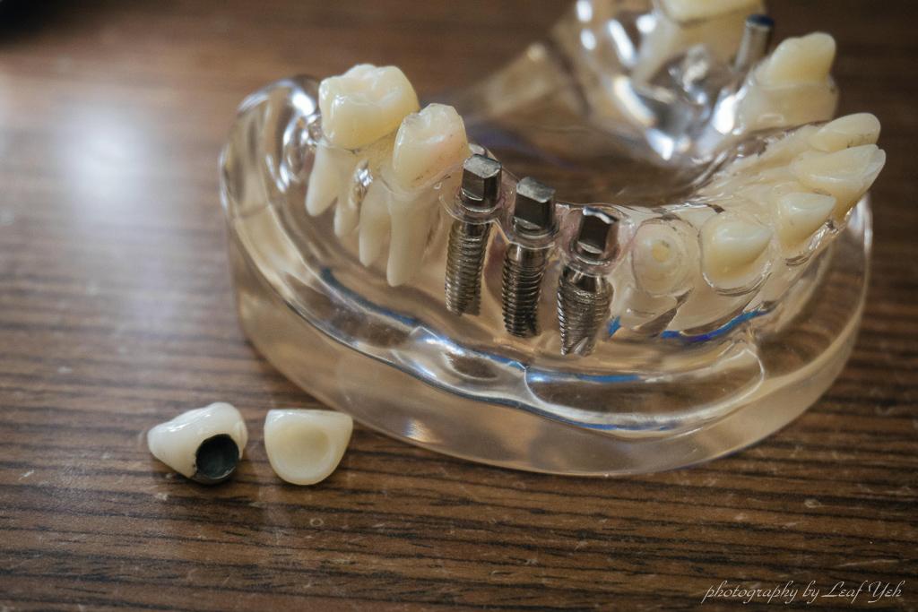 當代牙醫診所,桃園當代牙醫,中壢當代牙醫,桃園植牙推薦,中壢植牙推薦,中壢植牙評估,桃園牙醫推薦,中壢植牙推薦,當代牙醫風評,梁嘉元醫師,舒眠麻醉植牙