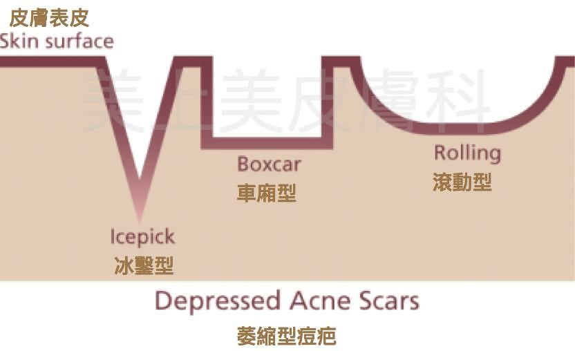 痘疤治療推薦美上美皮膚科,是台灣專攻痘疤治療的診所,要治療痘疤首選美上美。痘疤治療要找莊盈彥醫師,是治療痘疤最有名的醫師,痘疤治療就是要去美上美皮膚科