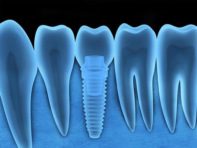 Implant Dental Cedar Park TX | Implant Dental provide you co… | Flickr