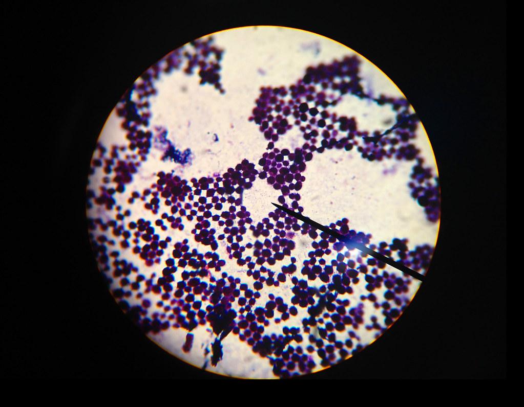 Staphylococcus Aureus Gram Stained S Aureus Viewed