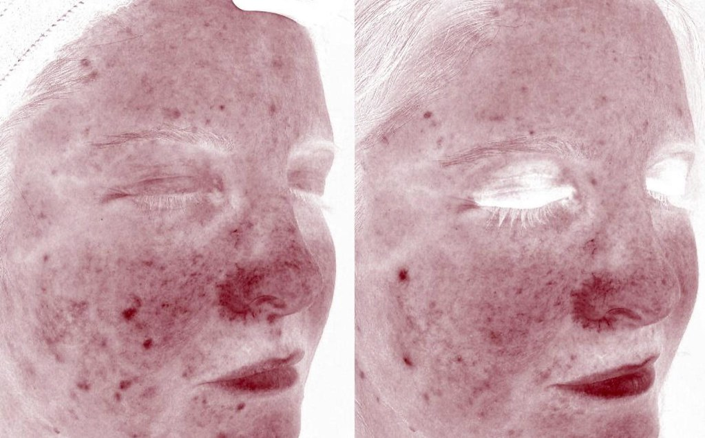紅痘疤怎麼治療?治療紅痘疤要靠585二極體雷射!585二極體雷射是專門治療紅痘疤的雷射!585二極體雷射跟染料雷射對於紅痘疤跟酒糟性皮膚炎有不錯的治療效果,不傷表皮修復期短。