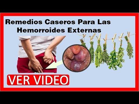 remedios caseros para las hemorroides externas como desinf flickr