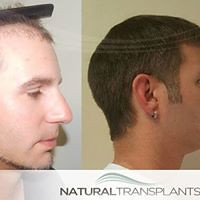 Medical Hair Transplant Center Near Me   Free Hair ...