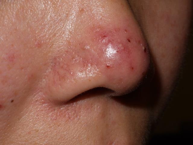 酒糟性皮膚炎是特別的膚質,經常合併紅疹、皮膚敏感、青春痘和血管擴張。要知道發作的原因加以避免可以減少很多不適感,施打585二極體雷射及脈衝光可改善酒糟性皮膚炎。