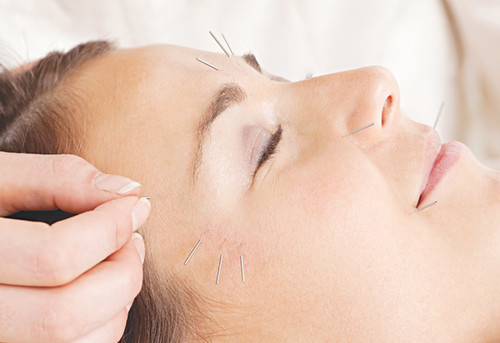 Facial Acupuncture Treatment Detail | by tapchicuocsong.vn