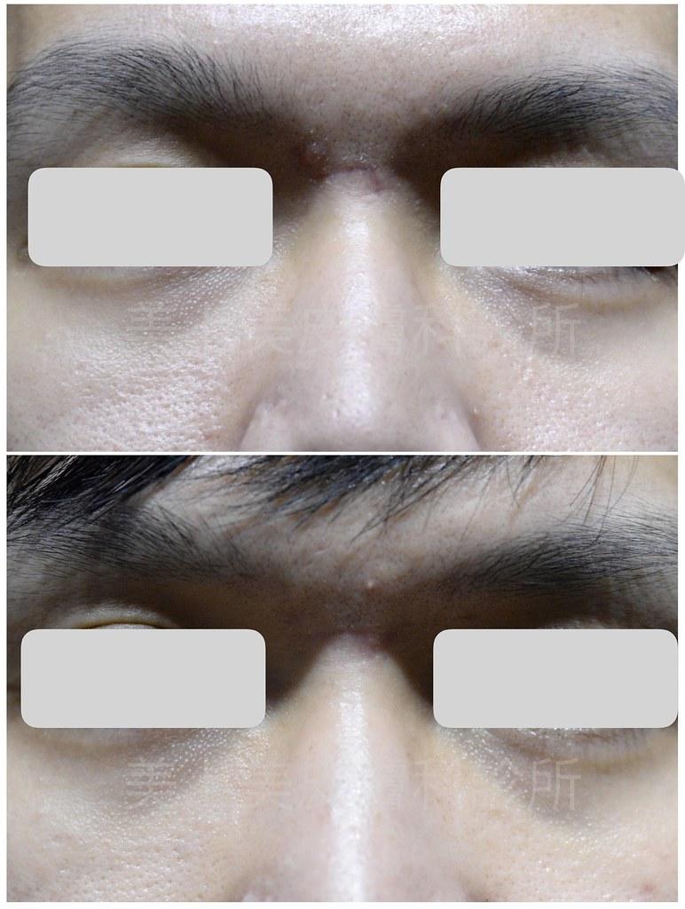 疤痕是身上永遠的記號!隨著科技的進步現在的雷射已經可以來做疤痕治療!在治療疤痕上可以看到很好的成效。