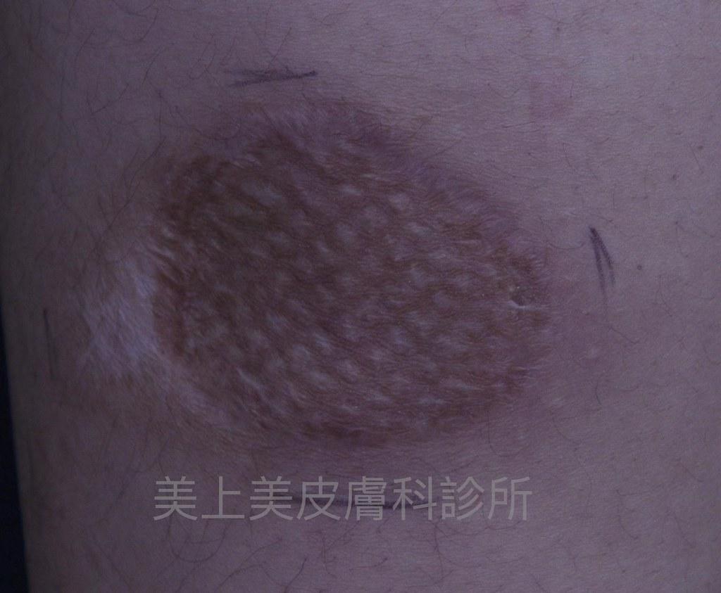 不論是什麼疤痕都可以透過很多種疤痕治療的方式來做淡化消除!想治療疤痕、淡化疤痕交給莊盈彥醫師就對了!