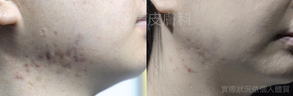 增生性疤痕與蟹足腫是不正常的疤痕癒合的過程,做這種疤痕治療要有耐心,治療增生性疤痕與蟹足腫要靠UP雷射