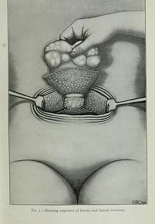 This image is taken from Annals of surgery, 34 | by Medical Heritage Library, Inc.