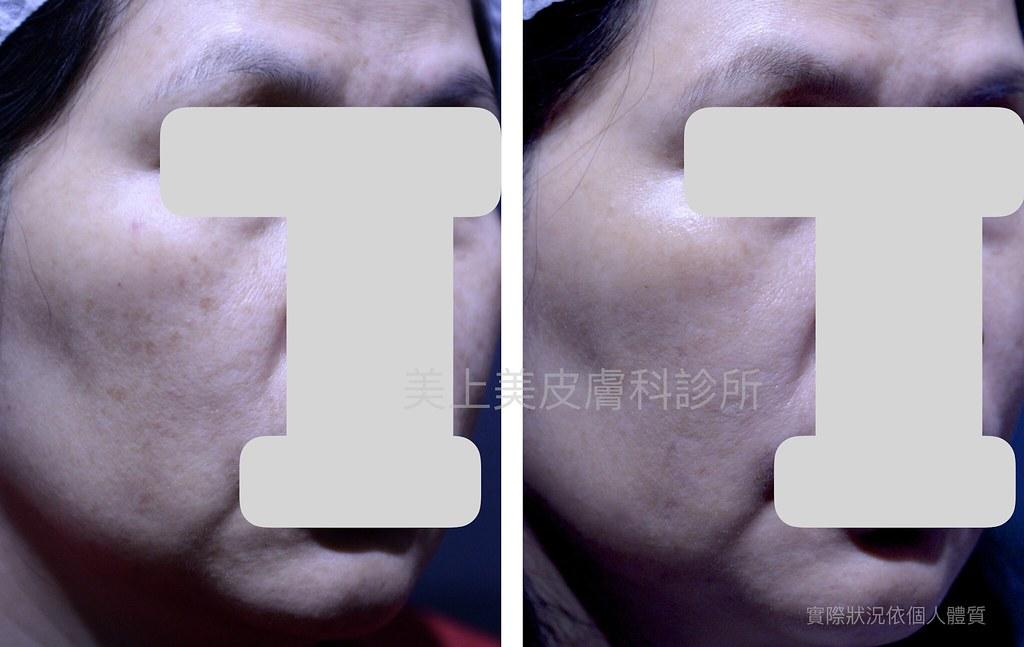 完美的除斑對策,完美的除斑科技,美上美的除斑雷射技術是業界第一,利用最新的除斑雷射,幫您消除斑點,皮膚美白。美上美的除斑療程,給您有最有感的除斑效果。