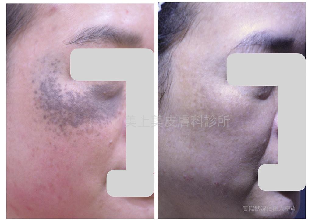 太田氏母斑就是胎記,要消除太田氏母斑要靠雷射來除斑。皮秒雷射治療胎記特別有用,由於黑色素在深層位置,皮秒雷射或淨膚雷射要很多次治療!消除斑點請找美上美