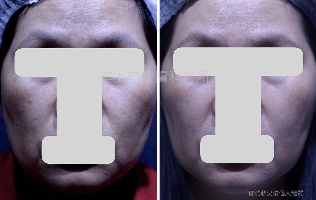 完美的除斑策略,完美的除斑技術,美上美的除斑雷射技巧是業界第一,利用最新的除斑雷射,幫您消除斑點。美上美的除斑雷射療程,給您有最有感又有用的除斑效果。