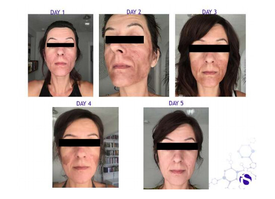 IS CLinical Prodigy Peel System