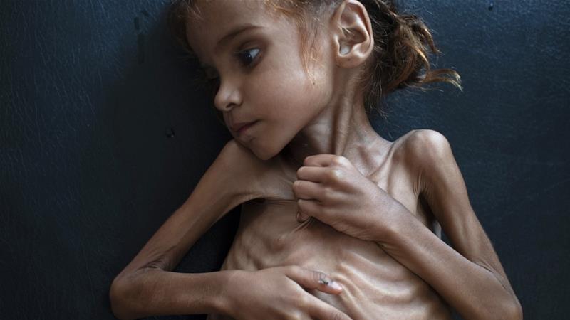 年僅七歲的葉門孩童胡珊(Amal Hussain),最終死於營養不良。(圖片來源:Tyler Hicks/The New York Times)