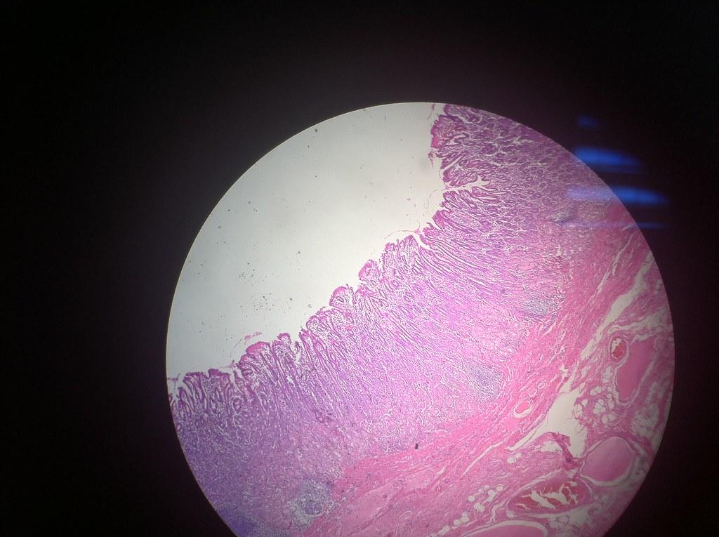 Humen Pyloric Stomach Drashiekh Flickr