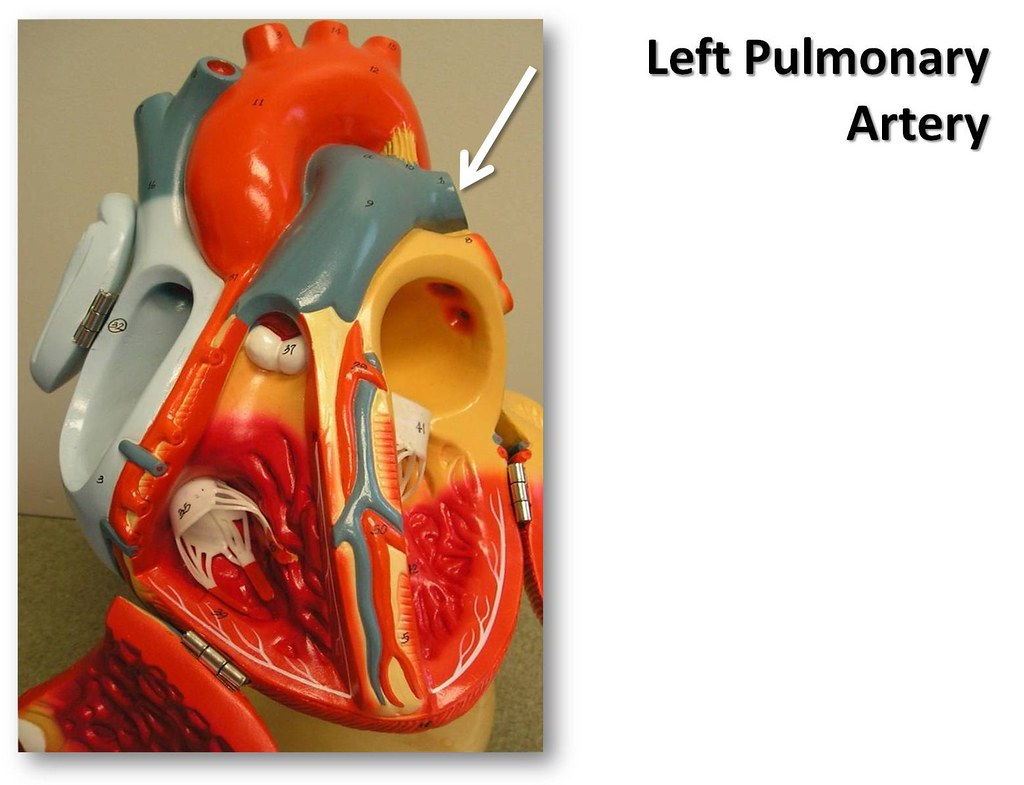 Left Pulmonary Artery Anterior View The Anatomy Of The Flickr