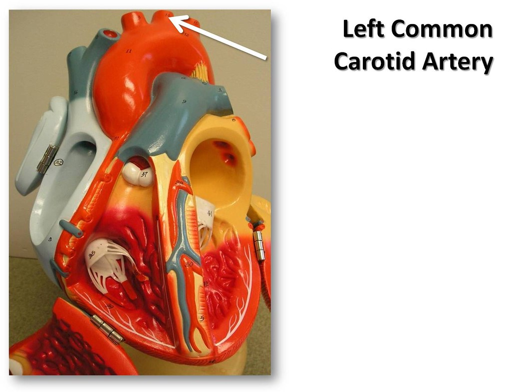 Left common carotid artery, anterior view - The Anatomy of… | Flickr