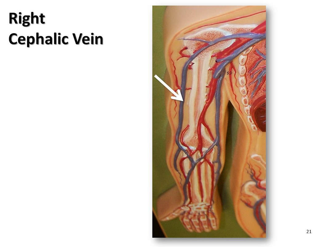 Right Cephalic Vein The Anatomy Of The Veins Visual Guid Flickr