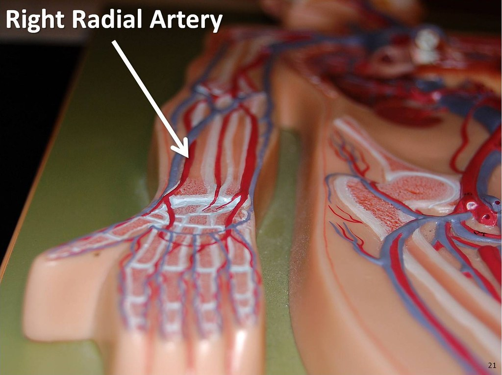 Right Radial Artery The Anatomy Of The Arteries Visual G Flickr