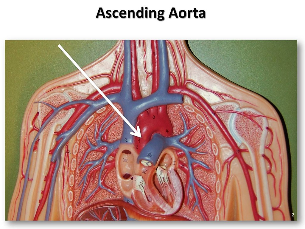 Ascending Aorta The Anatomy Of The Arteries Visual Guide Flickr