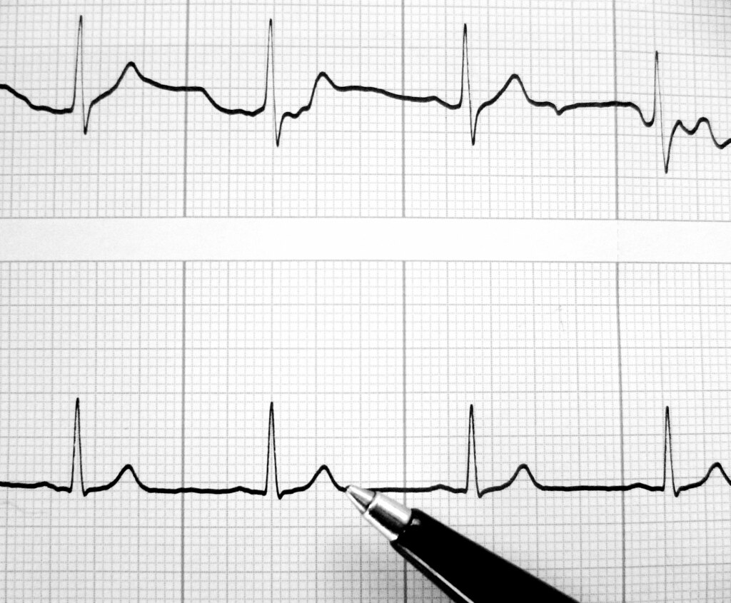 Plot Diagram Fill In: heartbeat | @dailyshoot #ds421: Create a photograph today tu2026 | Flickr,Chart