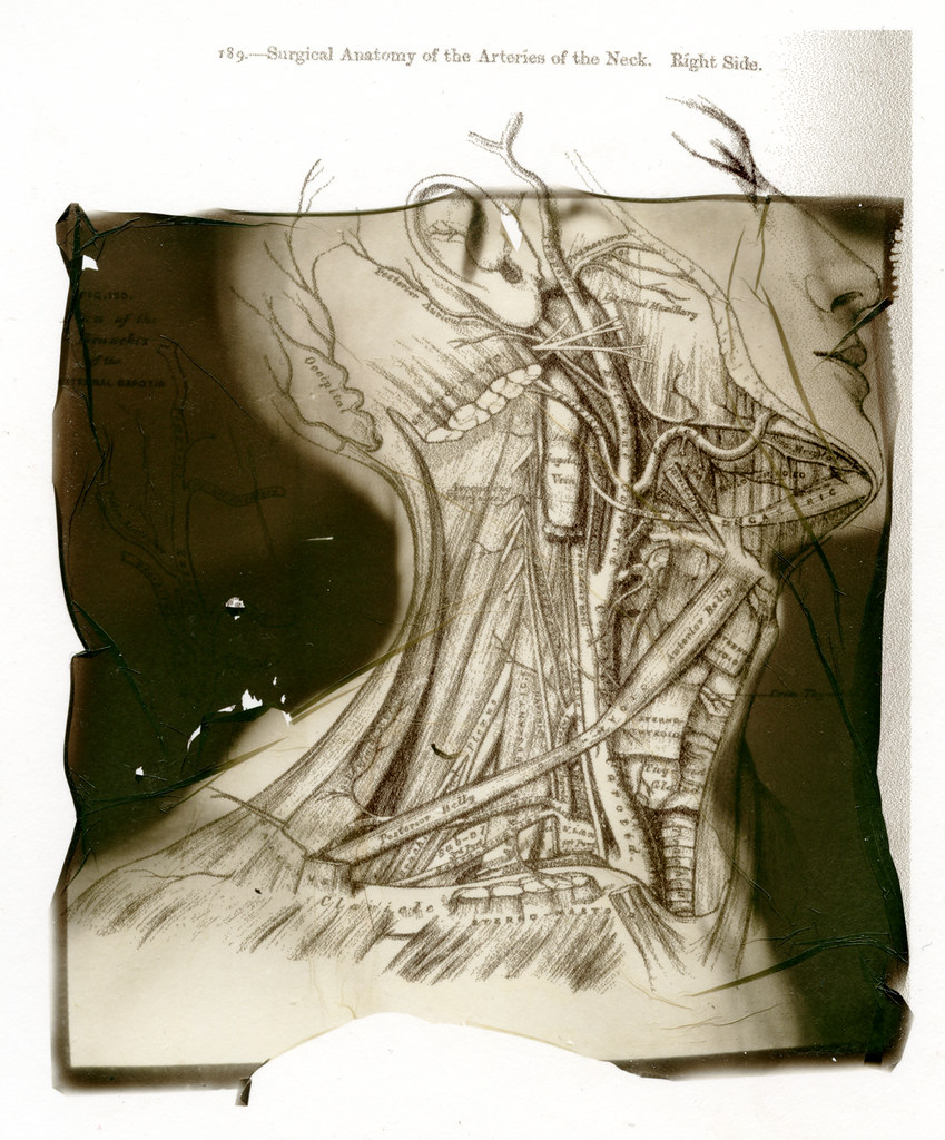 Surgical Anatomy 189 Surgical Anatomy Of The Arteries O Flickr