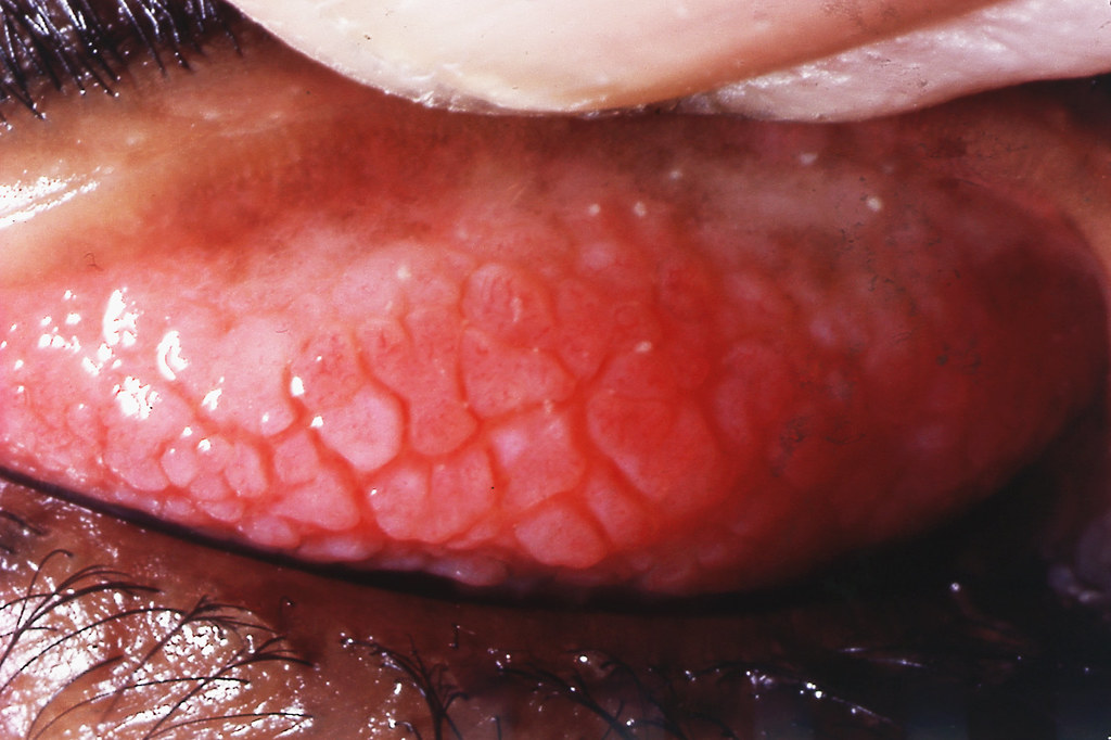 Papillae Of Vernal Conjunctivitis In An 18 Year Old Afghan Flickr
