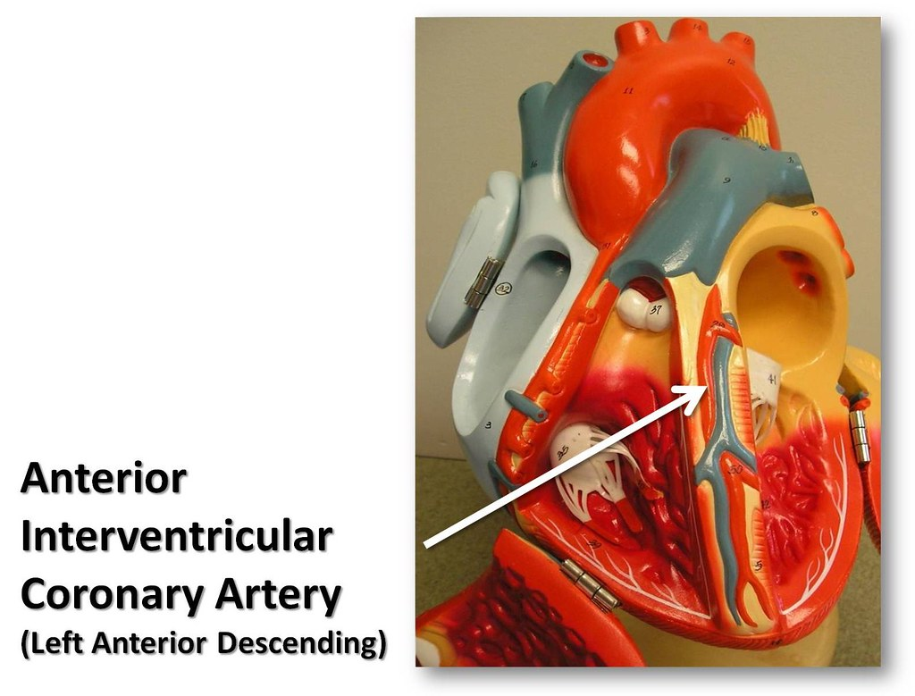 Anterior interventricular coronary artery - The Anatomy of… | Flickr
