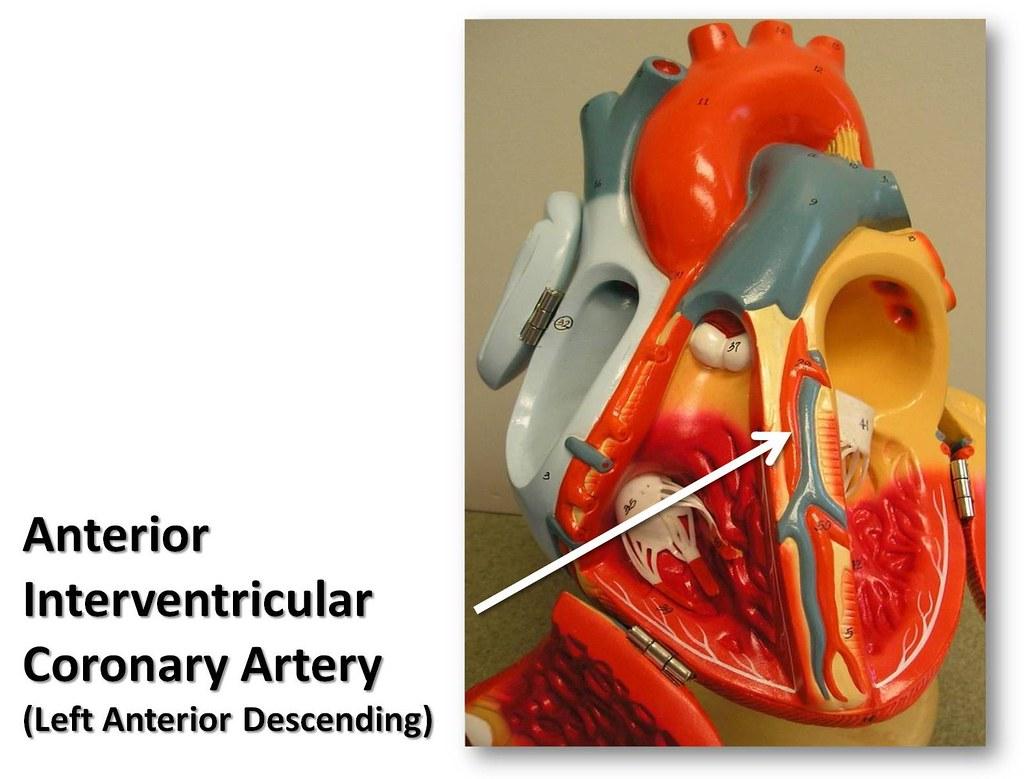 Anterior Interventricular Coronary Artery The Anatomy Of Flickr