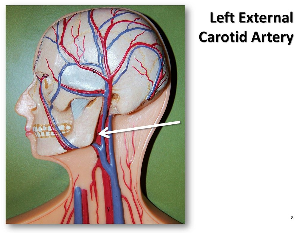 Left External Carotid Artery The Anatomy Of The Arteries Flickr