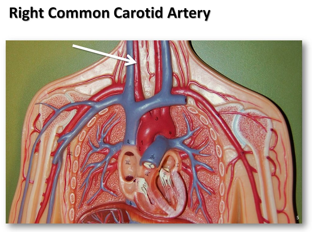 Right common carotid artery - The Anatomy of the Arteries … | Flickr