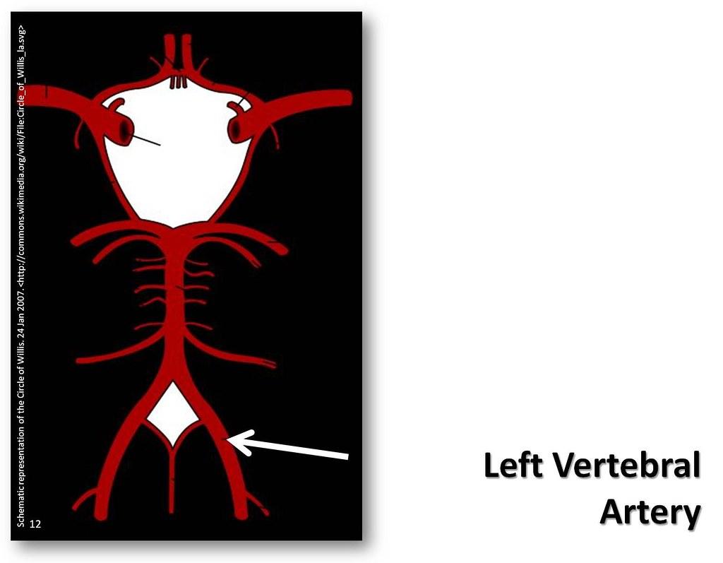 Left Vertebral Artery The Anatomy Of The Arteries Visual Flickr