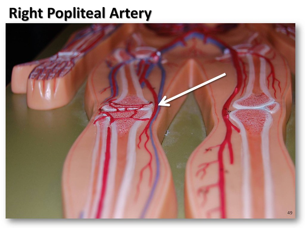Right popliteal artery - The Anatomy of the Arteries Visua… | Flickr
