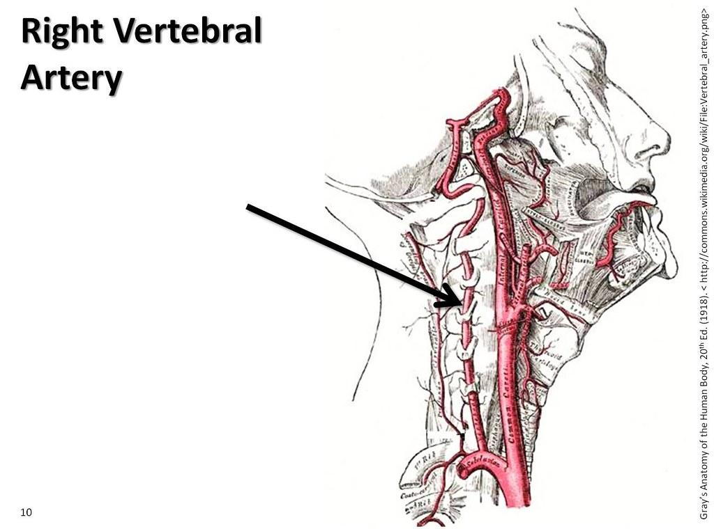 Right Vertebral Artery The Anatomy Of The Arteries Visua Flickr