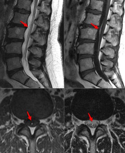 fibrolipoma filum terminale