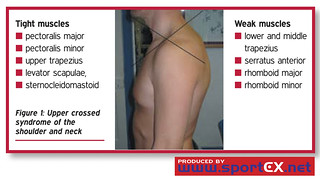 Upper crossed syndrome of the shoulder and neck | by sportEX journals