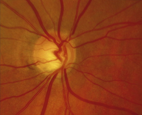 Glaucomatous optic neuropathy: splinter haemorrhages. | by Community Eye Health