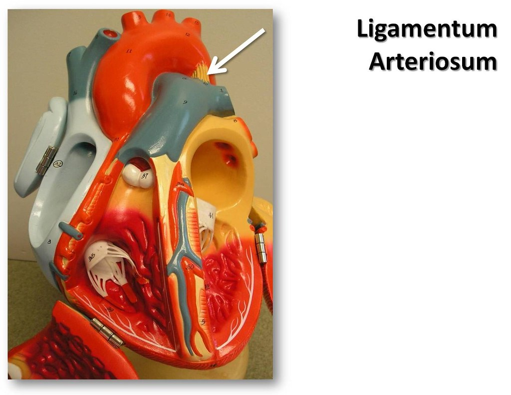 Ligamentum arteriosum, anterior view - The Anatomy of the … | Flickr