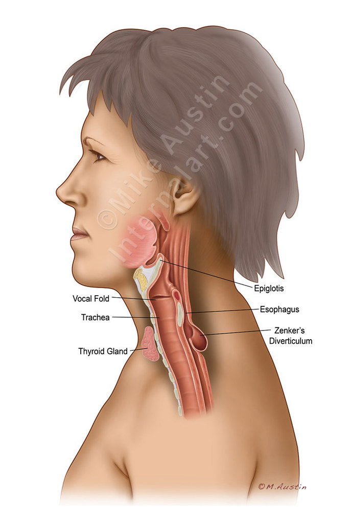 Zenkers Diverticulum 2 Neck And Throat Anatomy For A Tria Flickr