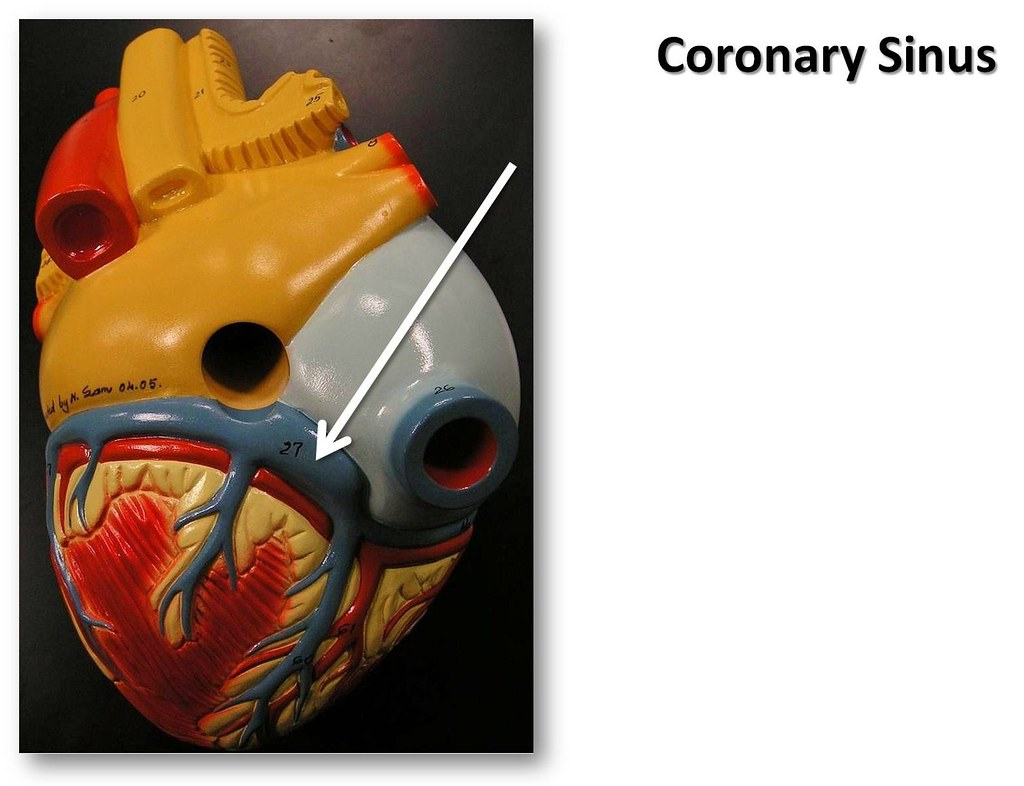 Coronary sinus, posterior view - The Anatomy of the Heart … | Flickr