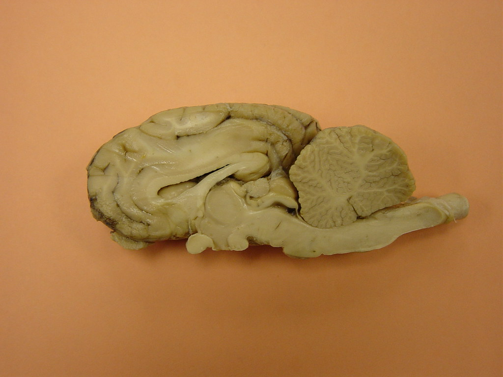 sheep brain sagittal caudate | steve.milway | Flickr