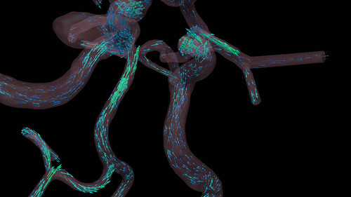 Blood flow visualization | by Argonne National Laboratory