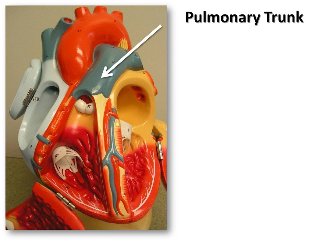 Pulmonary Trunk The Anatomy Of The Heart Visual Atlas P Flickr