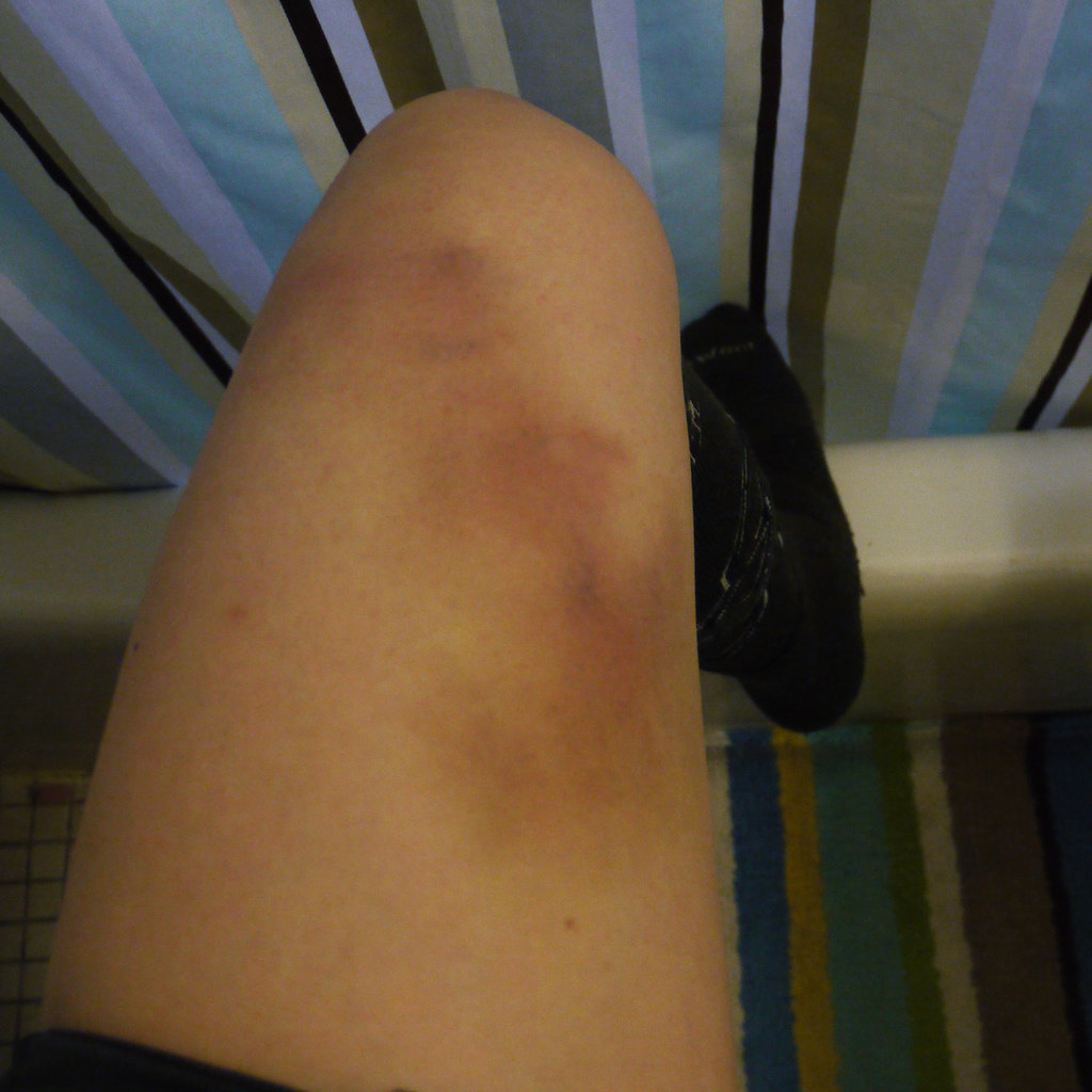 Image result for contusion injury