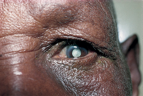 Mature cataract. | by Community Eye Health