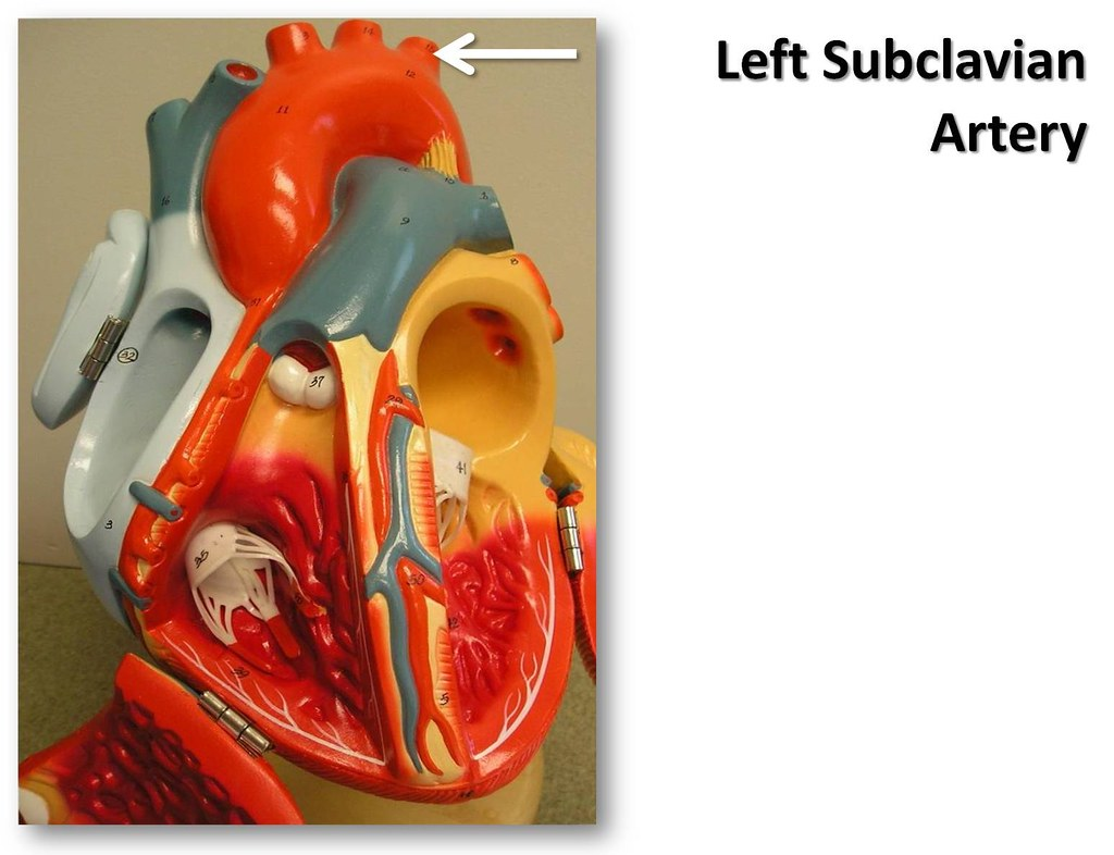Left Subclavian Artery Anterior View The Anatomy Of The Flickr