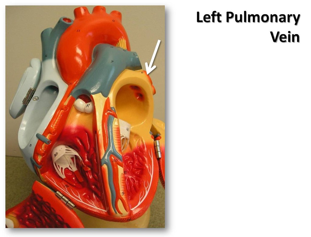 Left pulmonary vein, anterior view - The Anatomy of the He… | Flickr