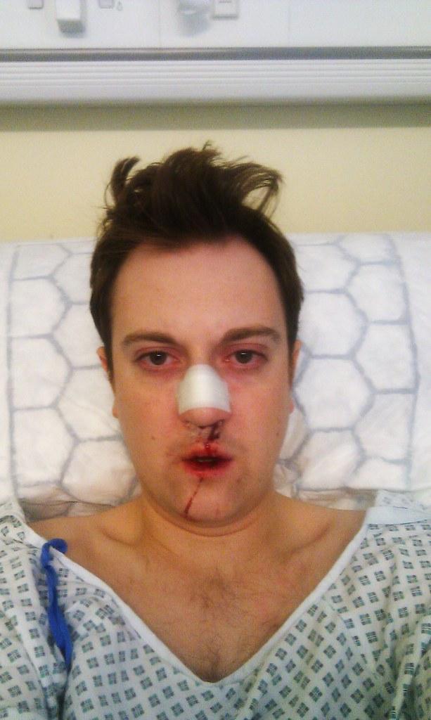 My Nose Hurts Jamieshonkycamerabiscuit Flickr